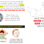 Herpes and your baby